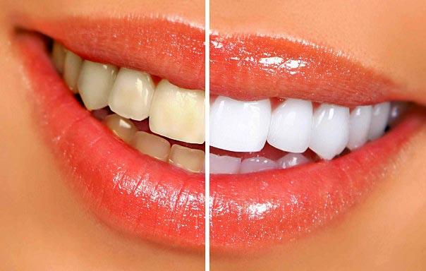 همه چیز در مورد جرمگیری دندان