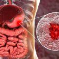 میکروبی که باعث سرطان معده می شود