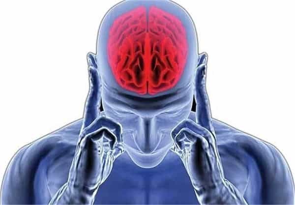 سکته مغزی از عوارض کروناست