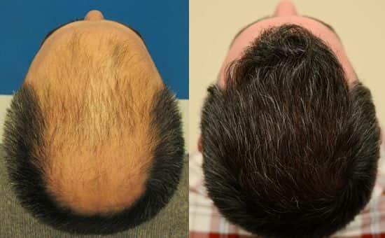 همه چیز در مورد کاشت مو به روش SUT