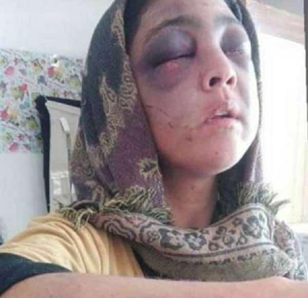 عکس تازه از همسر آزاری ناگوار در رودبار