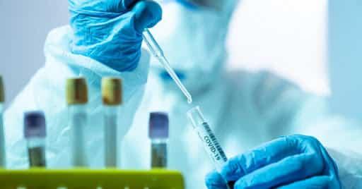 هزینه تست ویروس کرونا از 55 تا 118 هزار تومان